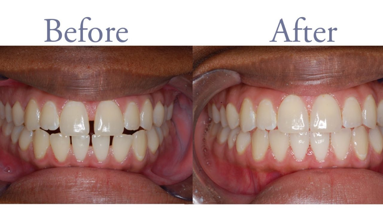 Misaligned teeth before and after alignment