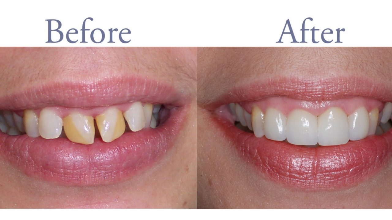Before and after smile repair