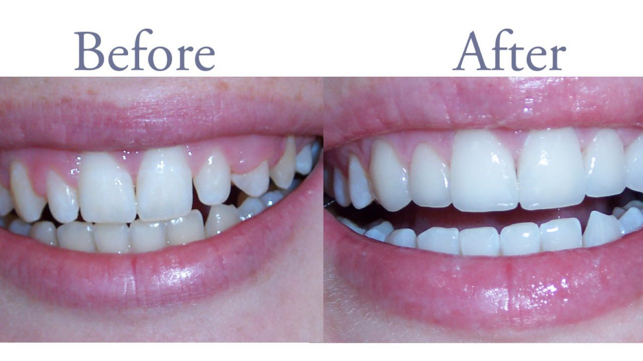 Before and after smile improvement