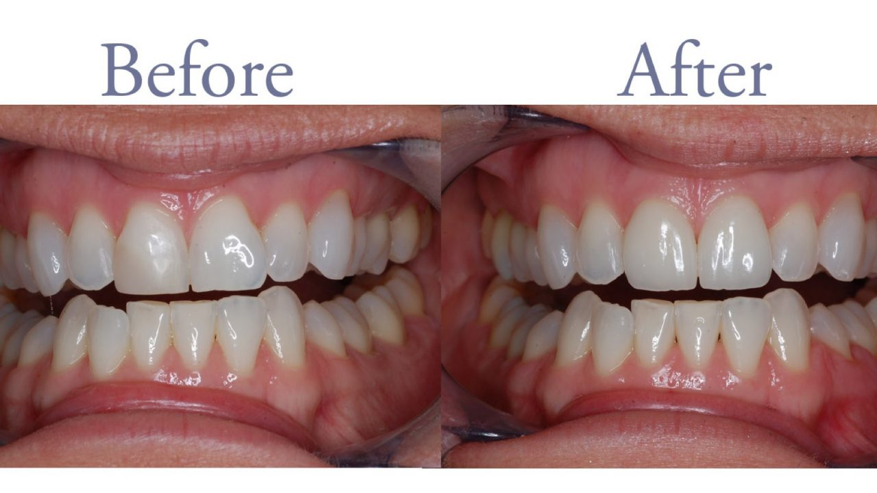 Before and after front tooth repair