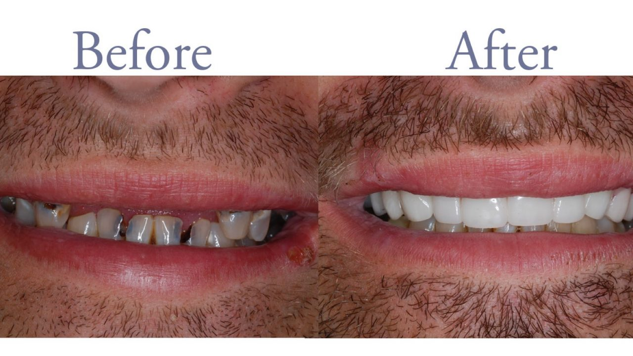 Before and after tooth decay repair