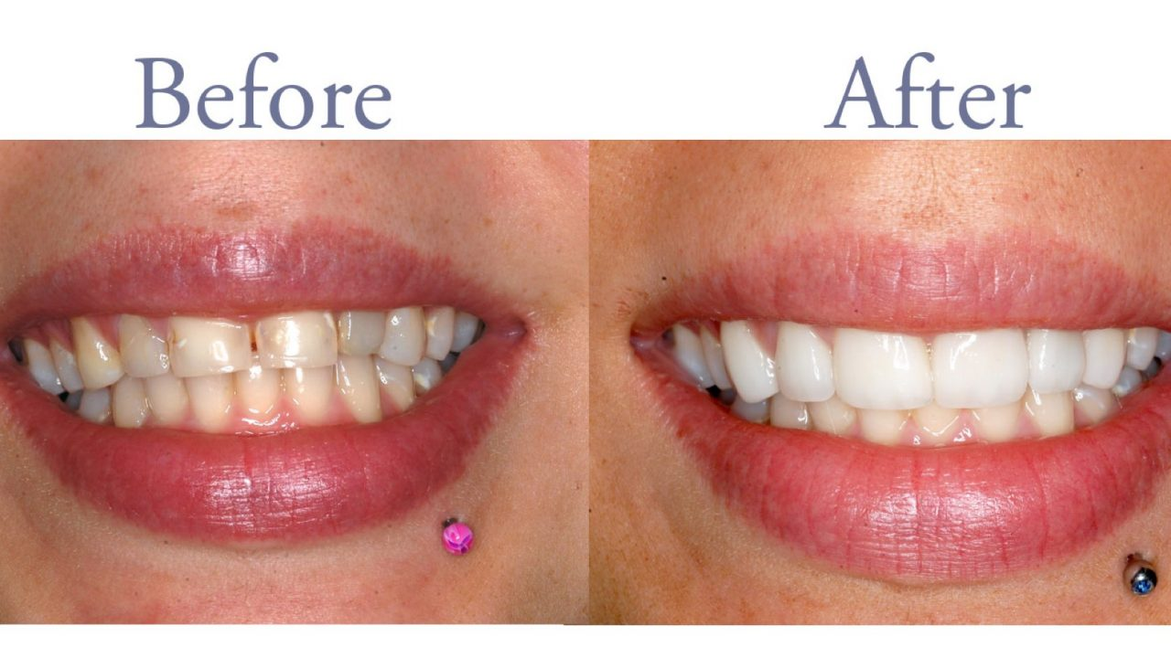 Before and after tooth decay treatment