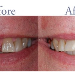 Before and after smile alignment