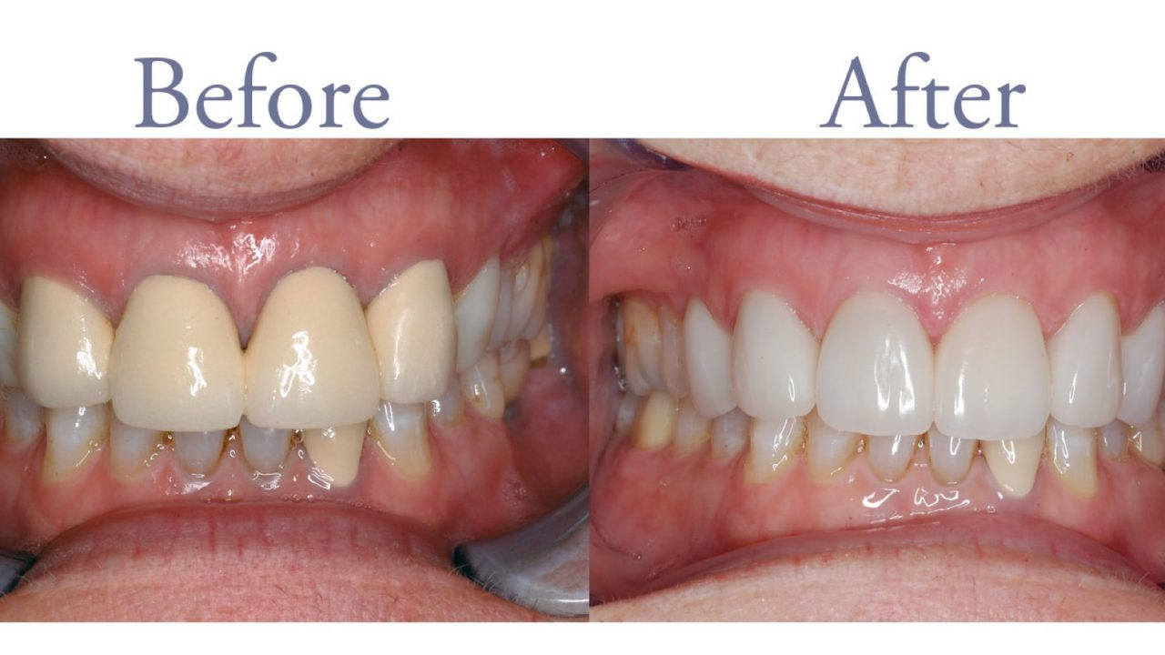 Before and after unnatural restoration replacement