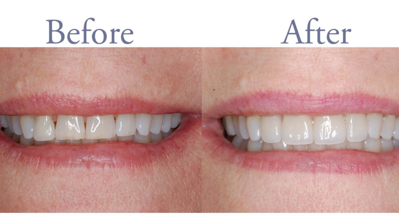 Gaps in front teeth closed