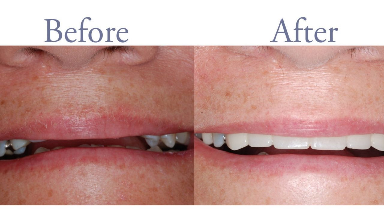 Before and after front tooth replacement