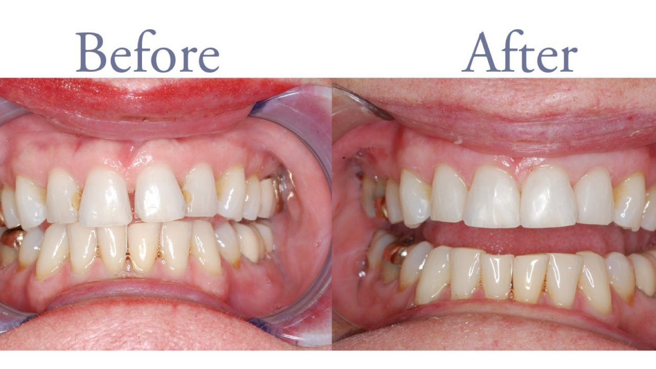 Before and after decay repair and smile alignment