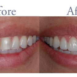 Discolored teeth before and after whitening