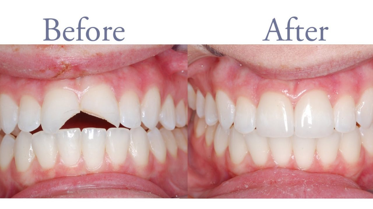 Before and after chipped fron tooth repair
