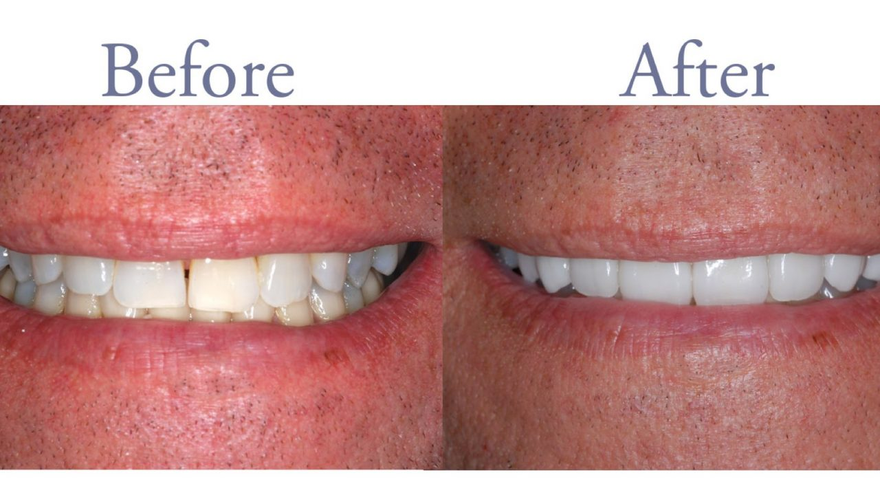 Before and after dental discoloration