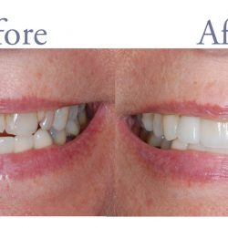 Before and after decay and dental damage