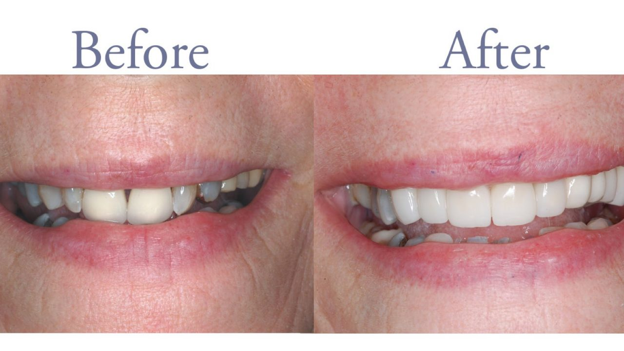 Before and after severe dental decay