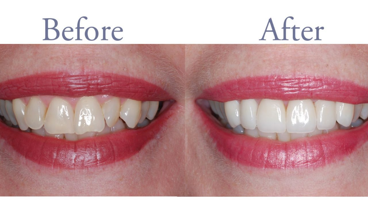 Before and after yellowed teeth