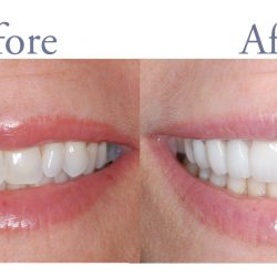 Before and after dental care images