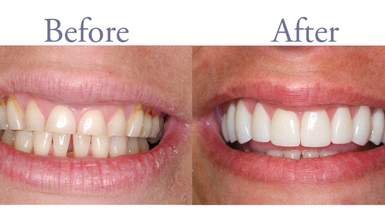 Severely worn teeth before and after treatment