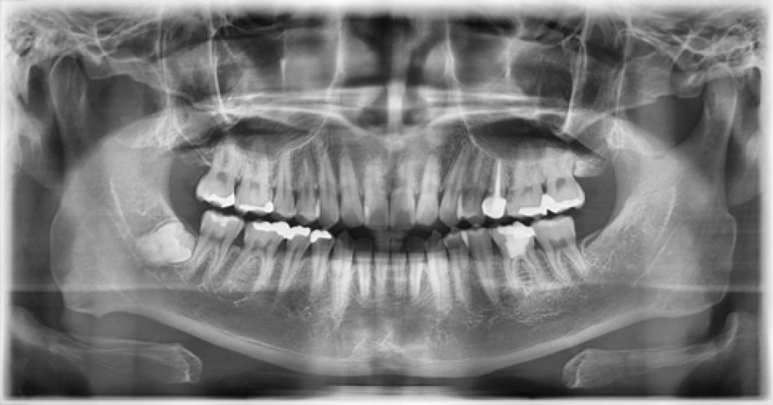 Full smile x-rays