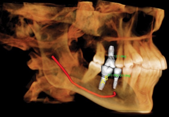 Dental x-rays with implants in place