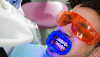 A guy having his teeth whitened