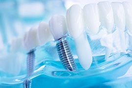 a model of dental implants in Lake Wales