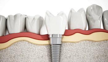 3D illustration of a dental implant and crown
