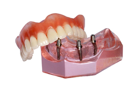 Model of implant-retained denture to replace upper arch.