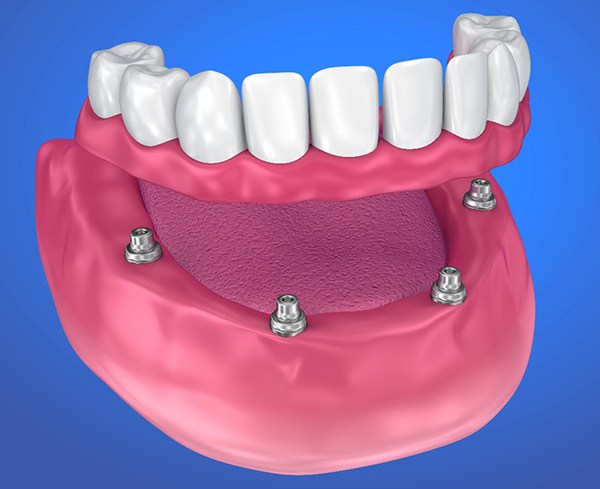 Image of an implant-retained denture.