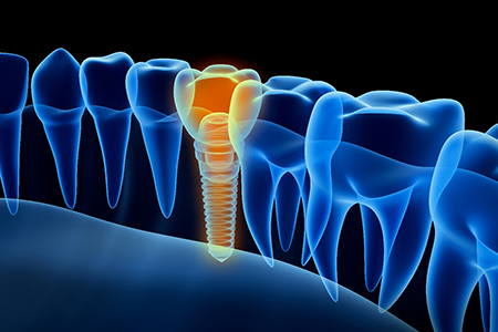 Diagram of an integrated dental implant in Lake Wales.